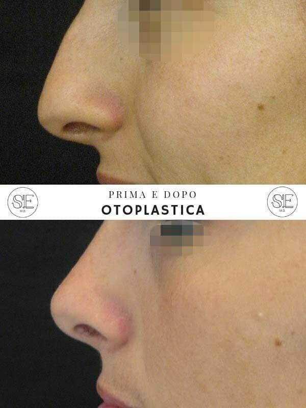 rinoplastica chirurgia naso