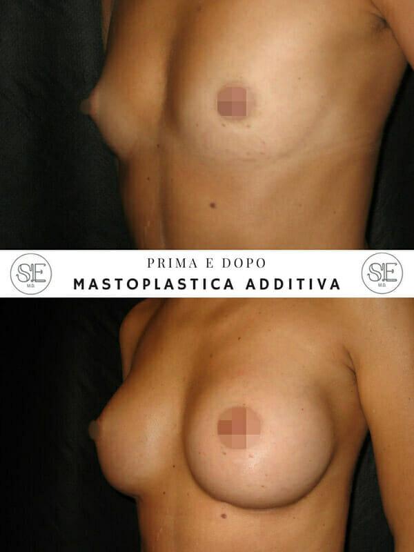 mastoplastica additiva roma